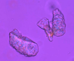 Vista microscópica de maltodextrinas encapsulando moléculas huésped