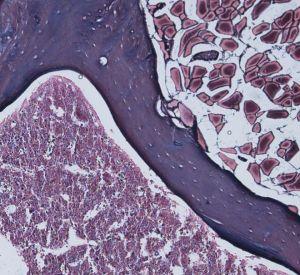 Médula ósea de ratones deficientes en la proteína AIRAPL